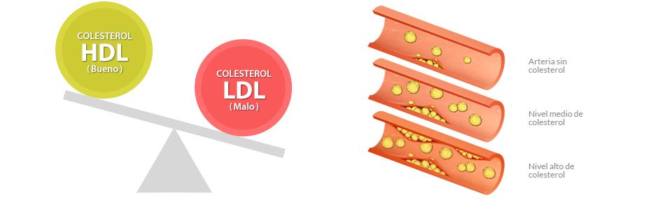 Colesterol laboratorio soluna - Alimentos beneficiosos para el colesterol ...