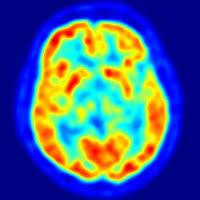 Hierro y cerebro